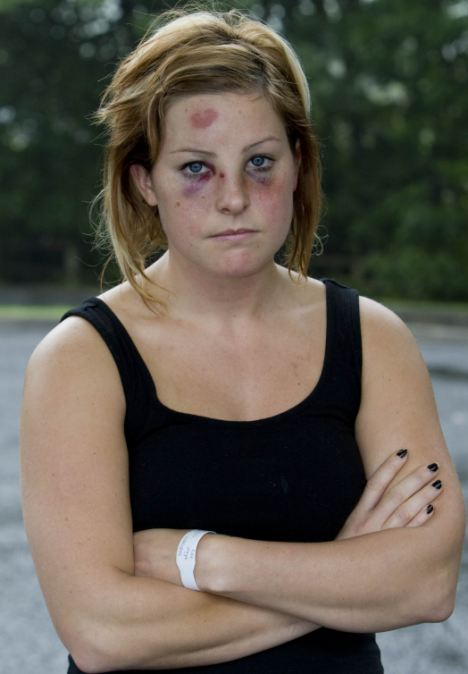 Emma Winch was hit by the metal lawn mower as she slept