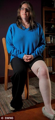 Sonya shows her scarred knee from where the malignant melanoma was removed