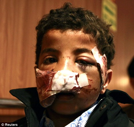 Suffering: Mohammed Muftah, nine, who lost his tongue after being hit by shrapnel in Misrata