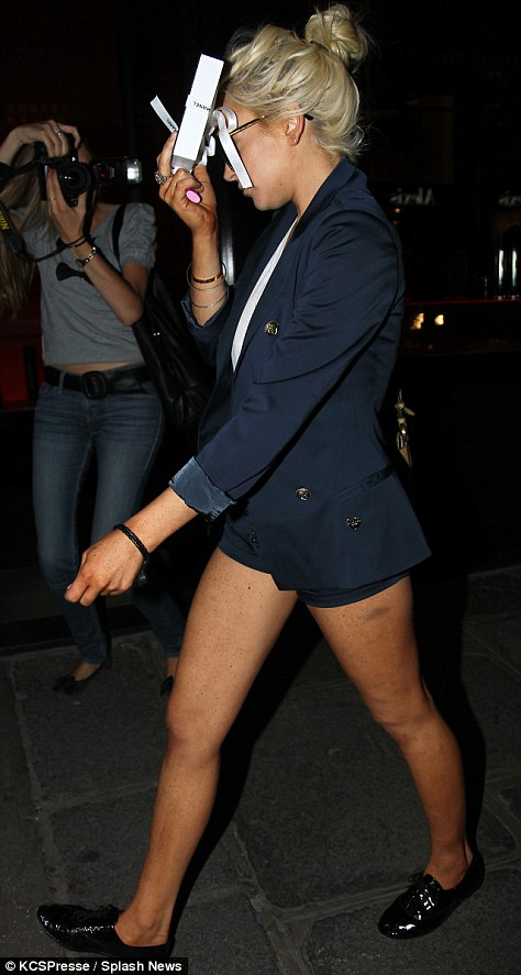 Exposed: The audacious attire exposed a large unsightly bruise on the actress' thigh and what appeared to be a fresh application of fake tan