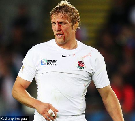 Lewis Moody of England looks on as blood pours from a cut against France