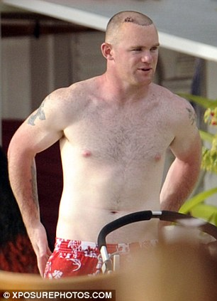Sensitive: Rooney's scalp looks tender in the days following his hair transplant