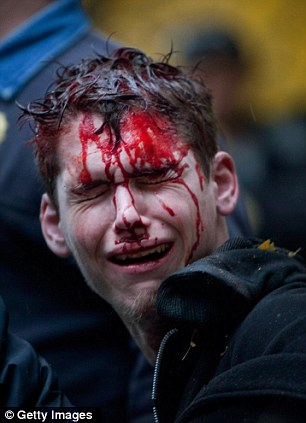 A man who identifed himself as Brendan Watts is seen with blood on his face while surrounded by three police officers in Zuccotti Park on November 17, 2011 in New York City.
