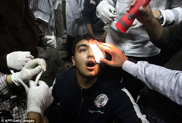 Victim of The Eye Hunter: Egyptian police officer, First Lieutenant Mahmoud Sobhi El Shinawi, is suspected of targeting protesters by shooting them in the eye - leaving them blinded