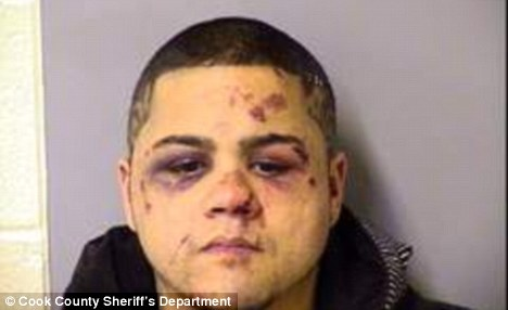 Wrong victim: Anthony Miranda was beaten up after he tried to take on a mixed martial arts expert on Friday night