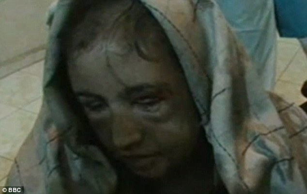 Dreadful: Sahar Gul's appalling physical condition shortly after she was  rescued can be seen in this image