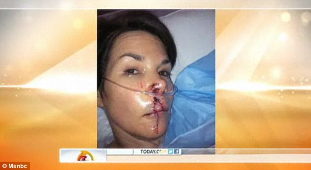 Terrible wound: Dyer underwent two surgeries and had more than 90 stitches to repair the damage