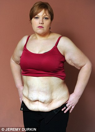 'Body like a melted candle': Kelly wants the NHS to pay for her to have the skin removed