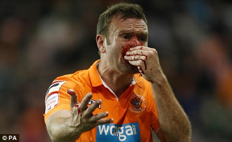 Battling Spirit: Ian Evatt left the field in the first leg with a bloodied nose