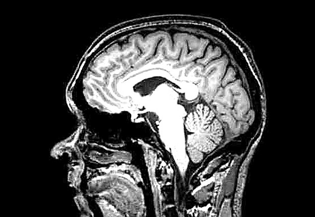 A 'slice' of Milns's brain as captured by the MRI scanner