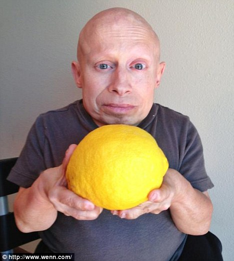 Getting fruity: Troyer posted a snap of himself with a oversized lemon on Twitter just days before