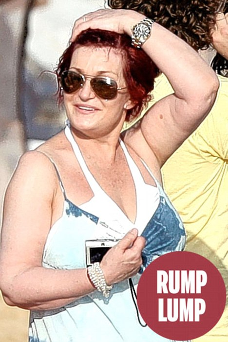 Bottom's up: Sharon Osbourne has a 'small backside' at the top of her arms due to flab squeezing together
