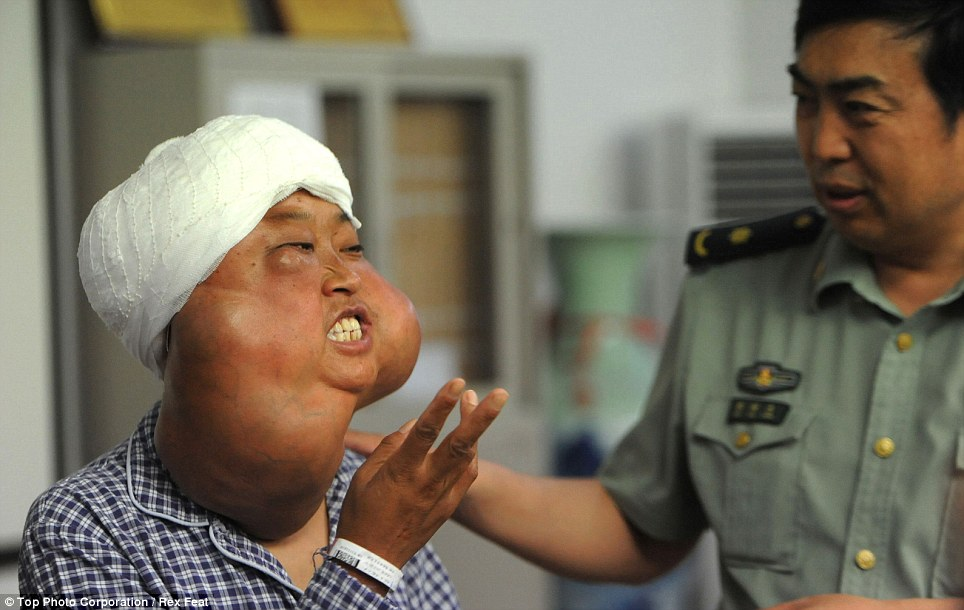 Preparing for treatment: Ms Li originally thought the first swelling on her forehead, which appeared in 2001, was an infected insect bite