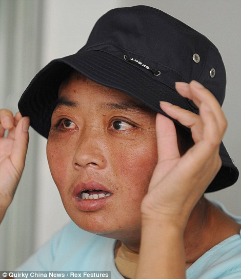 Li Hongfang checking out of hospital after surgery to remove disfiguring tumours from her face