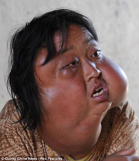 Li Hongfang's face is disfigured by abnormal lumps of tissue before the operation