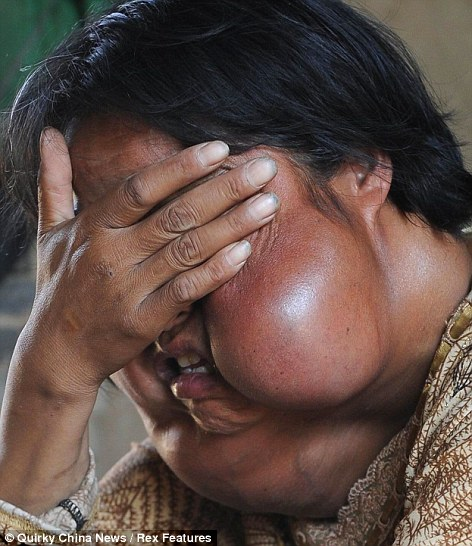 Misery: Li, 40, was shunned in public after a rare type of bone cancer caused tissue to grow under her skin, distorting her features beyond recognition
