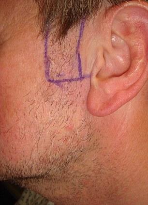 Sideburn transplant before