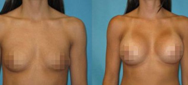 Outraged: The women came across photographs of their breasts alongside their names