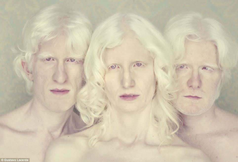 Vision: 'Since the beginning of 2009 I have been researching the universe of albinos and trying to bring them to the front of the camera' says the artist