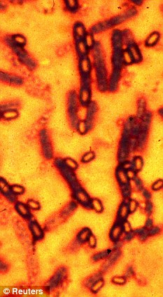 BACTERIA WHICH CAUSES ANTHRAX