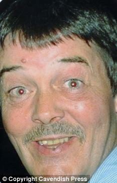 Bert on his 60th Birthday before surgery