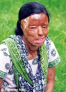 Sonali Mukherjee will undergo a series of surgeries