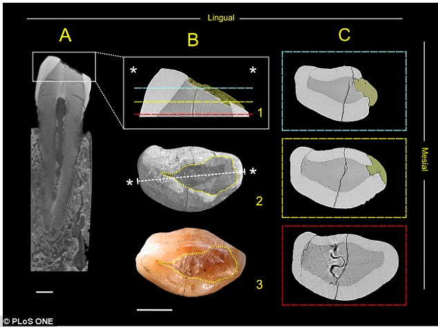 The researchers used a range of scanning techniques to see inside the tooth and reveal the beeswax filling.