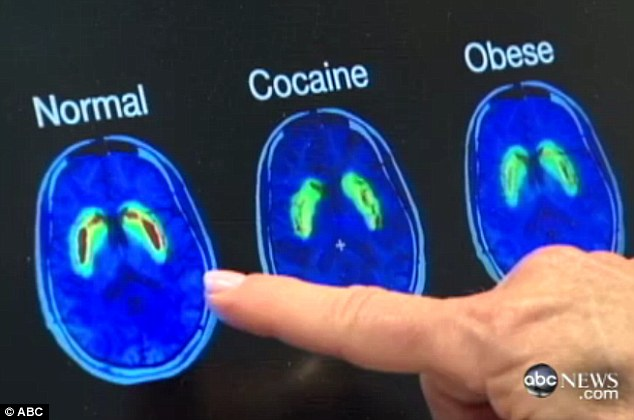 Scientific evidence: Changes that happen within the brain's reward system are identical whether it's drugs, alcohol, or food says Dr Pamela Peeke