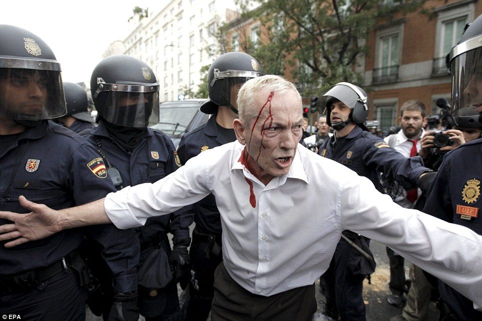 Casualty: A man is seen with blood gushing from a head wound after members of the Spanish National Police baton charged anti-austerity demonstrators in Madrid