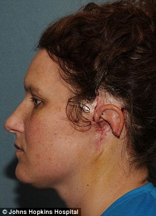 Sherrie is seen in October 2010 (left) immediately after her surgery to remove the majority of her ear and parts of her skull while (right) her right ear is mapped out as a stencil for cartilage taken from her ribs
