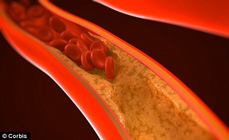 Scientists have identified 21 new genes linked to cholesterol levels. High levels of the fat in the blood may cause the arteries to narrow, raising the risk of a heart attack