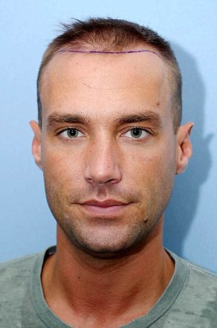 Before the procedure: Calum Best underwent a hair transplant after going bald made his confidence drop