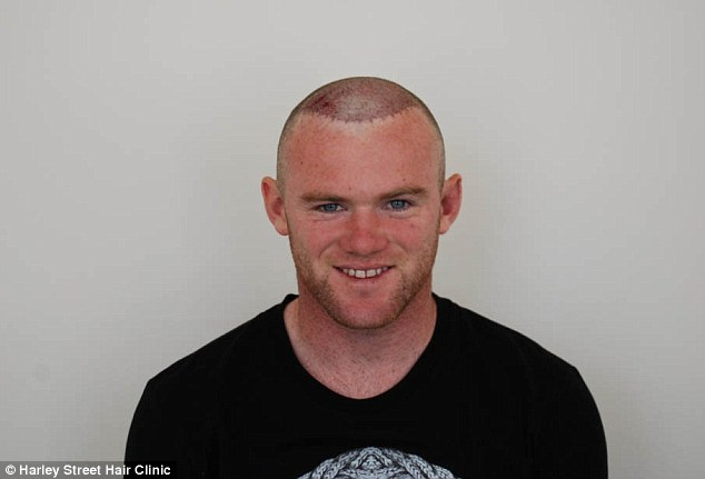 On your head, son: Wayne Rooney was extremely happy with his result as he went public with the procedure via his Twitter page