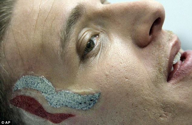 Removal: Eric Hartsburg is shown after his first laser procedure to remove a Mitt Romney tattoo from his face