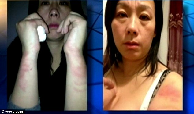 Injuries: Li shows red marks on her arms which she says were inflicted by police during the incident