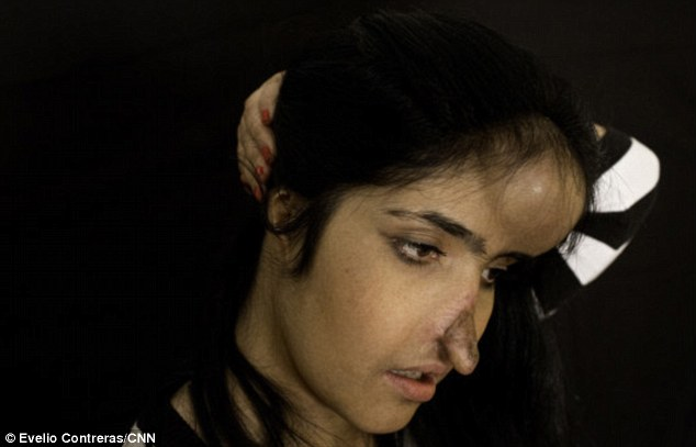 Doctors put a silicone shell under skin in her forehead to expand tissue that was then used to build her new nose
