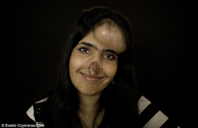 On the mend: Aesha Mohammadzai pictured six months into the reconstructive surgery to her nose