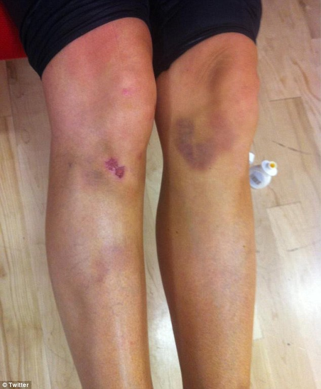 Ouch: Denise Van Outen reveals her very bruised and sore looking legs ahead of Strictly Come Dancing final