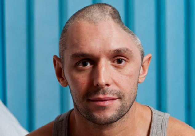 Lee Charie, 32, from Stanstead Abbotts in Hertfordshire, recovers in hospital after having a quarter of his skull removed which he transported back to the UK in a box