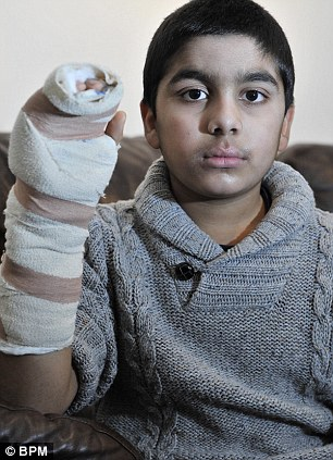 Injured: Abdullah Naveed caught his finger on a school fence