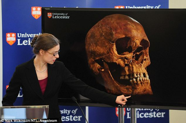 Dr Appleby points to an image of the skull of Richard III as she and colleagues outlined their findings today