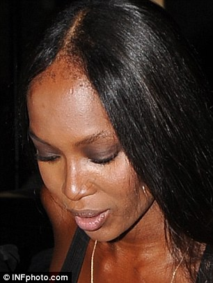 Health hazards: Doctors are now warning about the permanent dangers of hair extensions, the must-have accessory of celebrities like Naomi Cambell, and young women alike