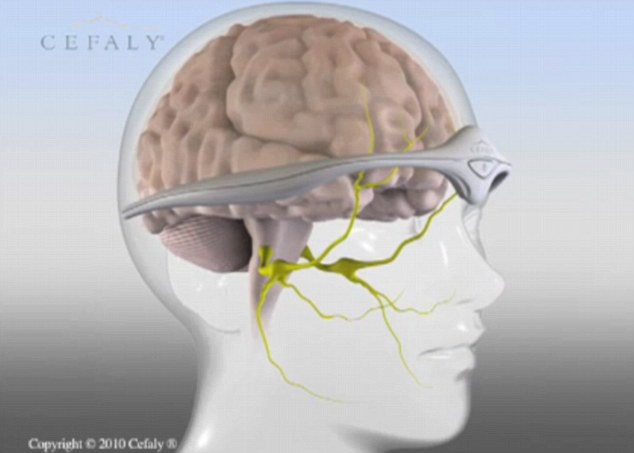 Prof Schoenen said the results are exciting because they were similar to those of drugs that are used to prevent migraine