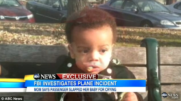 Injuries: Mrs Bennett said she was 'scared to death' when she saw that Jonah's eye was swollen