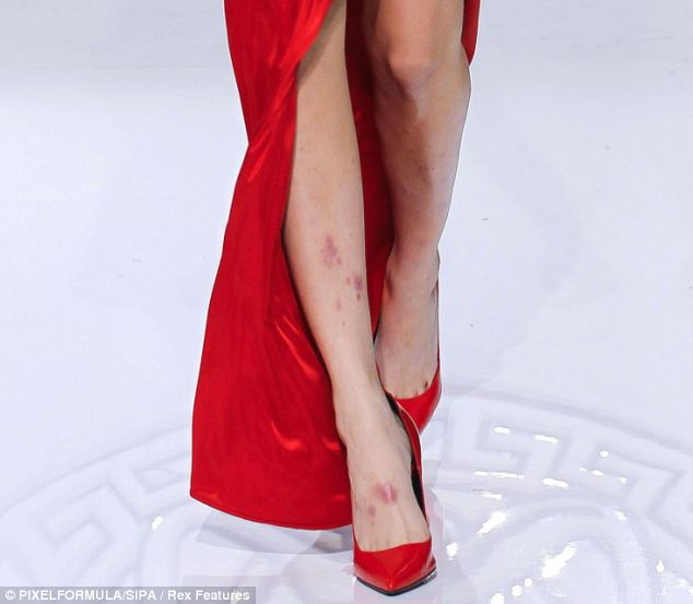 Cara Delevingne had a number of angry red bruises as she strutted down the catwalk at Milan fashion week