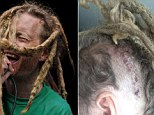Lead singer of punk band has PIG TAPEWORM removed from his brain after eating contaminated vegetarian burrito