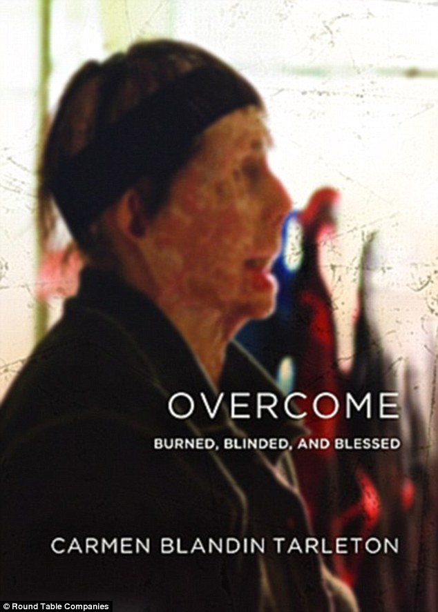 Uplifting: Tarleton's book 'Overcome: Burned, Blinded and Blessed' tells her story