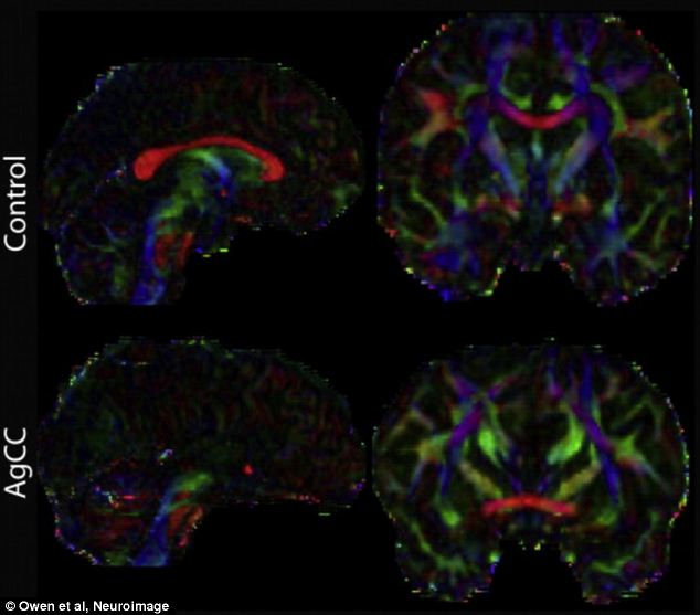 Different brain structures: Example midline sagittal and coronal colour fractional anisotropy (FA) images for a control subject with a normal brain and a patient suffering from agenesis of the corpus callosum