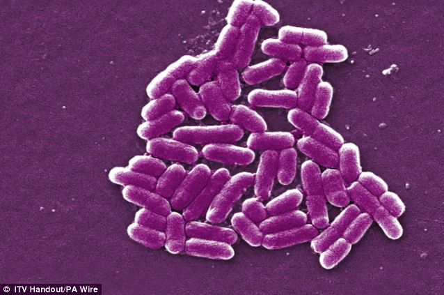 Spread: Superbugs were present in just one US state in 2001, according to the Centers for Disease Control and Prevention (CDC) but are now found in 42 (stock picture)