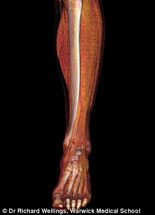 3D animation of the lower leg and foot